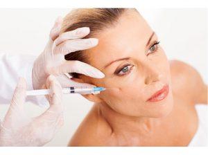 右ほほ骨付近にヒアルロン酸打ち放題でヒアルロン酸を注入している女性の画像です。