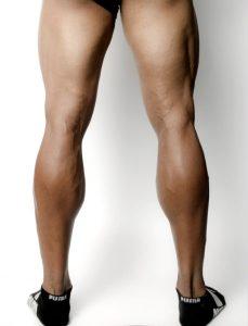 筋肉により太くなった下腿のイメージ画像です。ふくらはぎボトックスの適応ありです。