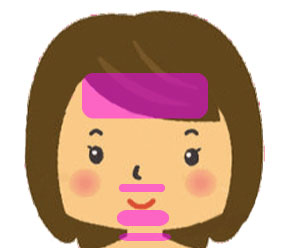 脱毛の照射範囲を説明するための顔の図です。額と鼻下、アゴ、クビの部位分け照射範囲がマゼンダ色にマーキングされています。