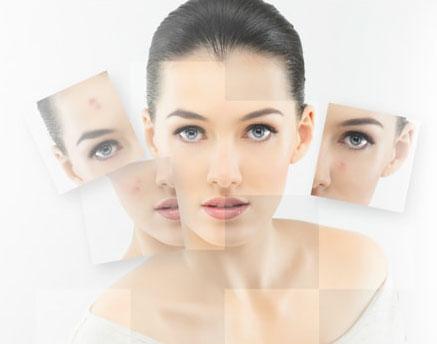 女性の顔のアップ画像です。フォトフェイシャルで様々な肌トラブルが改善したことを表すように皮膚状態の悪いお顔が一枚はがれてきれいにな素肌が出現してます。