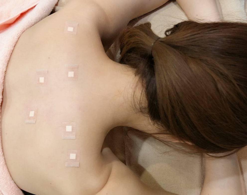 肩こり注射のモニター画像です。Dr.ゴトーが吉沢明歩さんに注射を打ち終わって、テープを張った画像です。