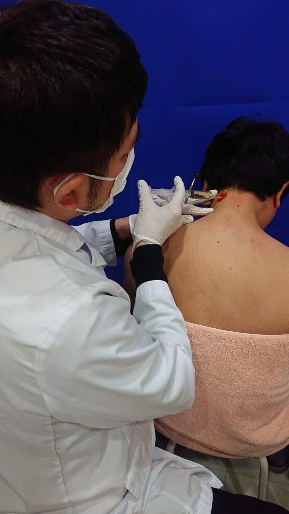肩こり注射を左の首に打っている画像です。