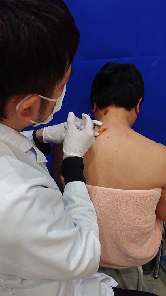 肩こり注射を2番めの左の肩のあたりに注射している画像です。