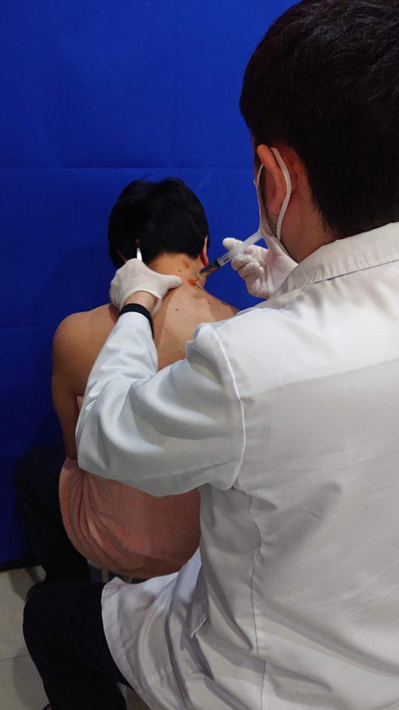 肩こり注射を右側の首に打っている画像です。