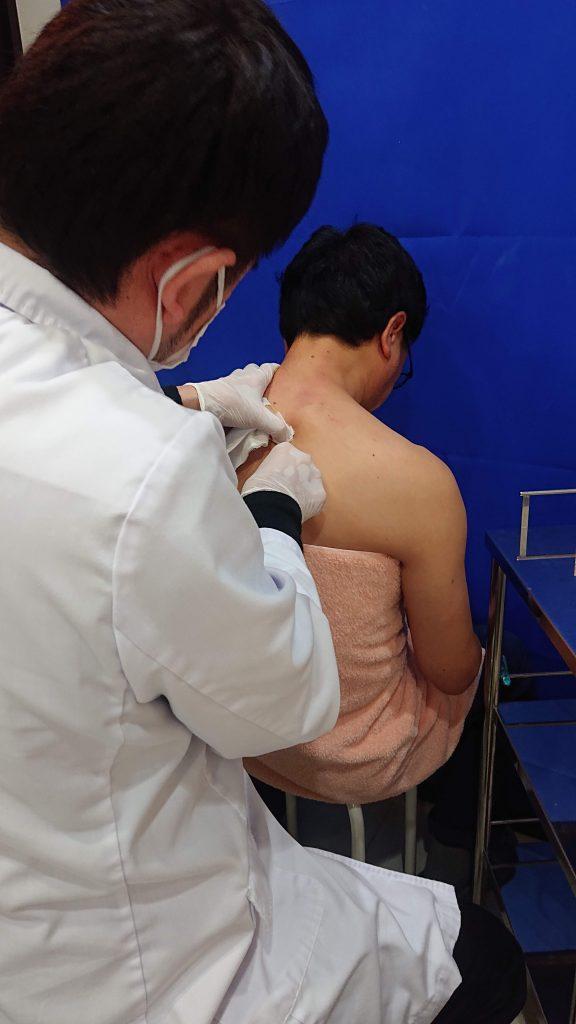 肩こり注射を打ち終わった後の画像です。しっかりと止血をして、消毒液は拭き取ります。