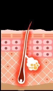 医療レーザー脱毛の仕組みを説明する絵です。レーザーにより毛が灼熱した様子を毛全体が赤くなることで表しています。